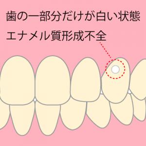 エナメル質形成不全 出典:歯医者選び.net