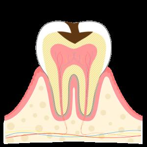 03虫歯ができる